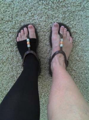 Photo of a pair of feet in sandals, one with a compression sock.
